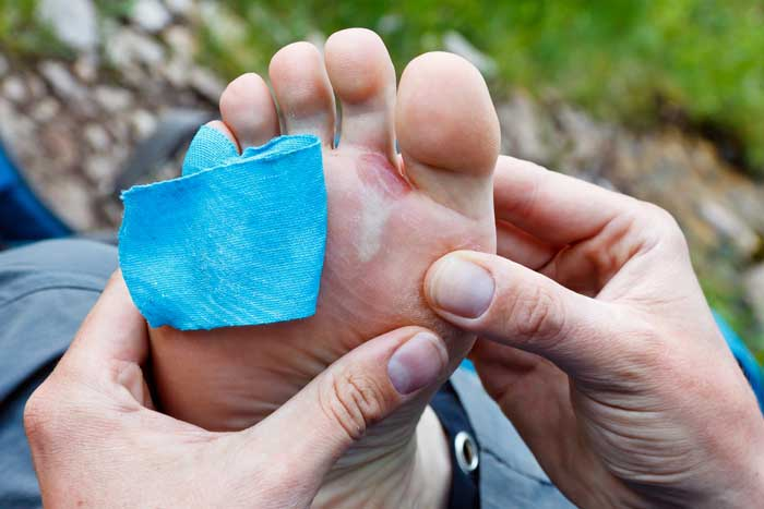 How To Prevent Common Hiking Injuries 4